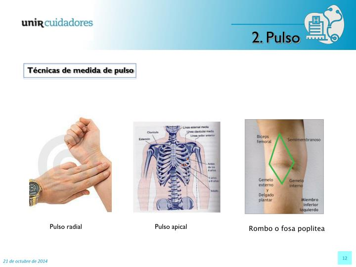 2. Pulso