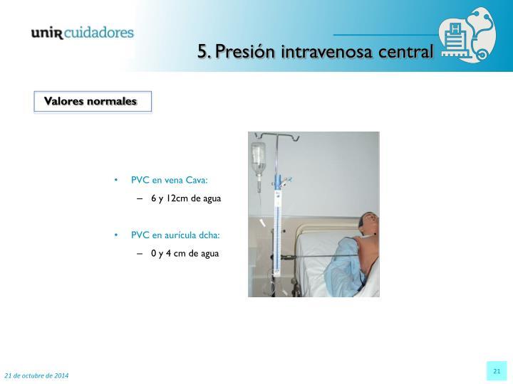 5. Presión intravenosa central