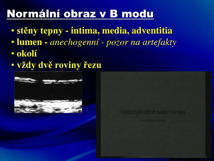 Normální obraz v B modu