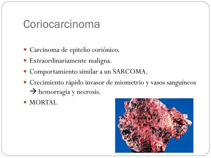 Coriocarcinoma