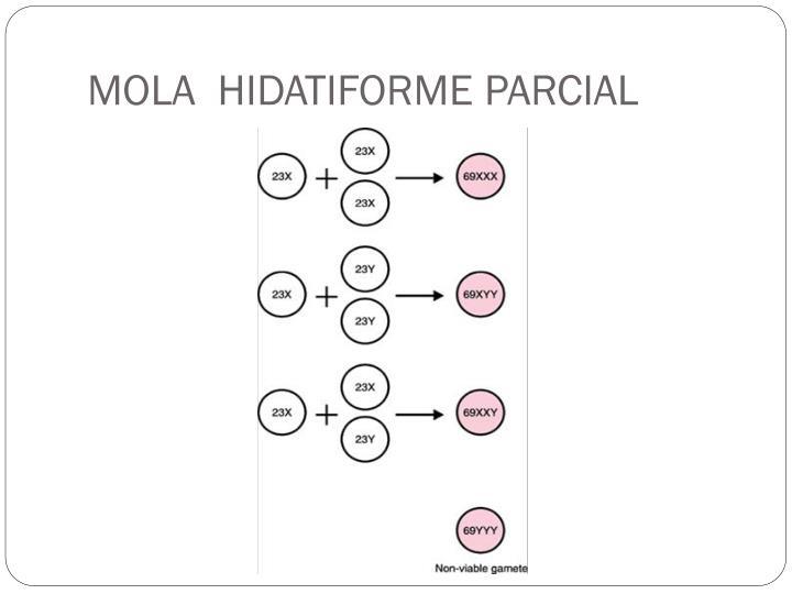 MOLA  HIDATIFORME PARCIAL