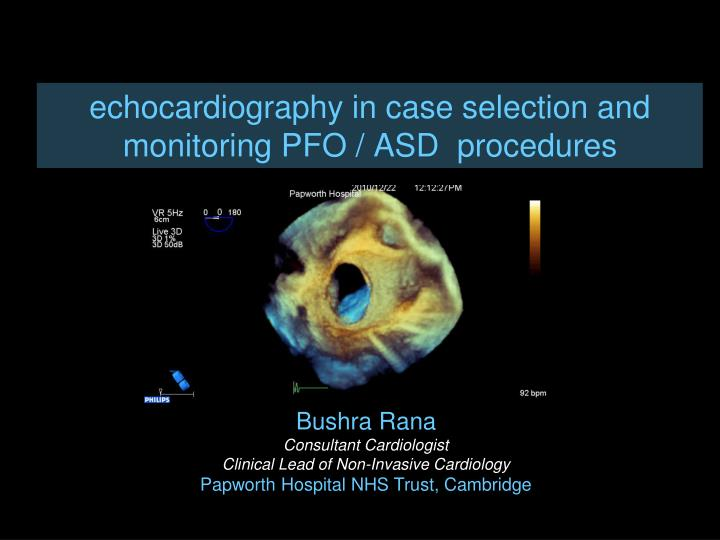 Echocardiography in case selection and monitoring pfo asd procedures