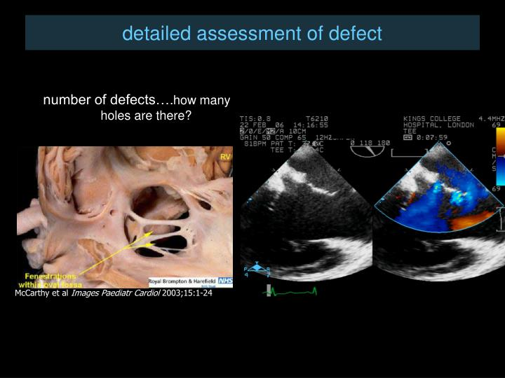 detailed assessment of defect