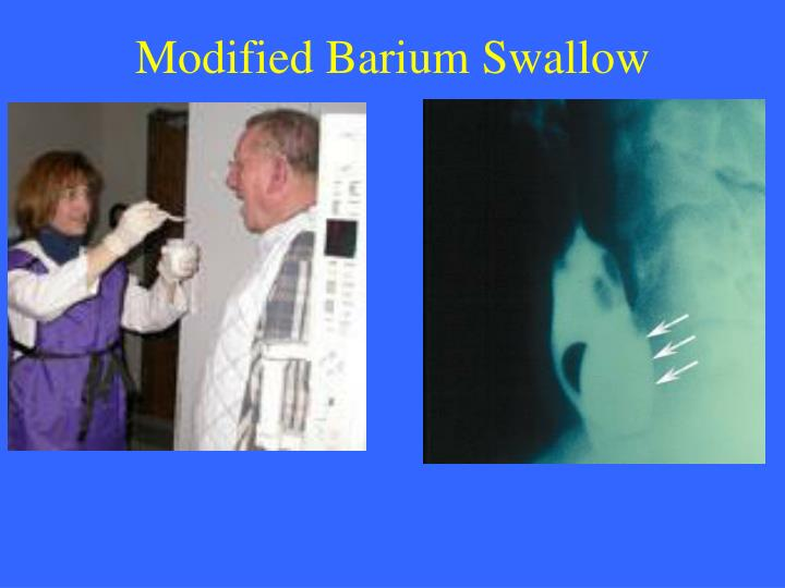 Modified Barium Swallow
