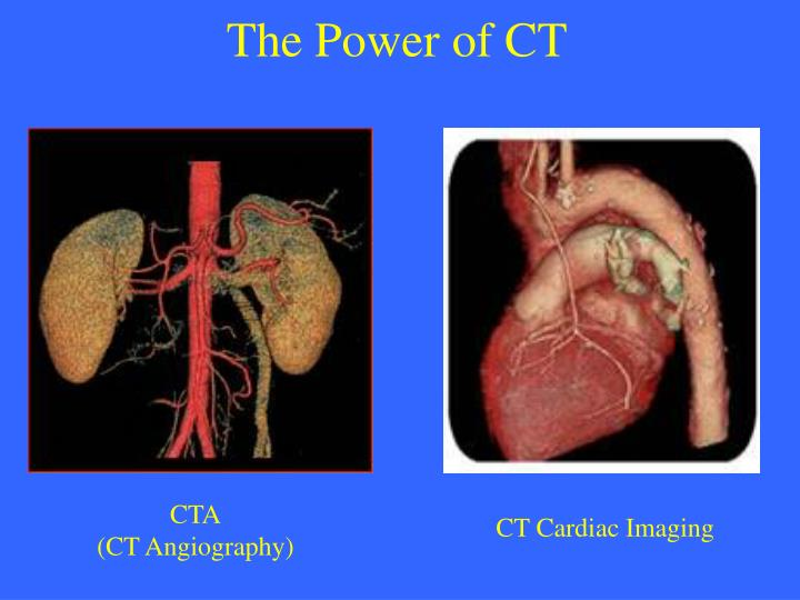 The Power of CT