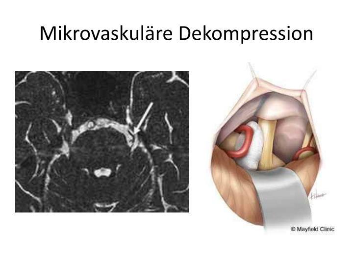 Mikrovaskuläre Dekompression