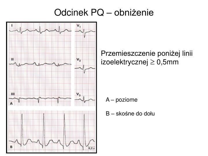 Odcinek PQ – obniżenie