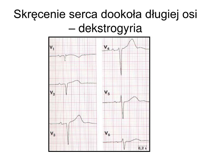 Skręcenie serca dookoła długiej osi – dekstrogyria