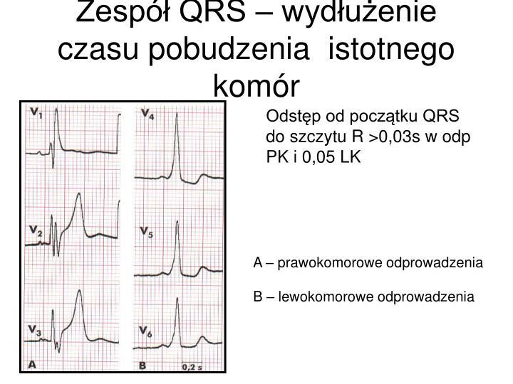 Zespół QRS – wydłużenie czasu pobudzenia  istotnego komór