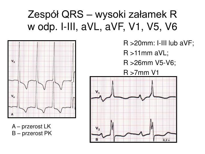 Zespół QRS – wysoki załamek R