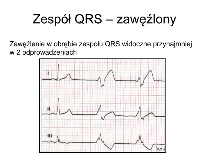 Zespół QRS – zawęźlony