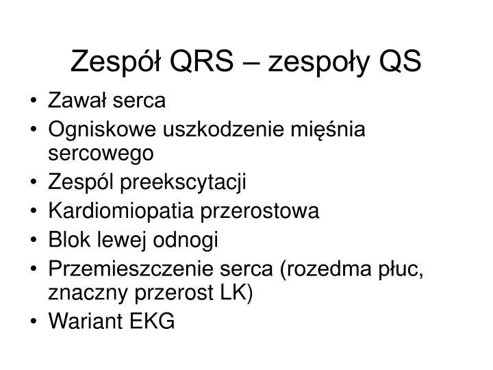 Zespół QRS – zespoły QS