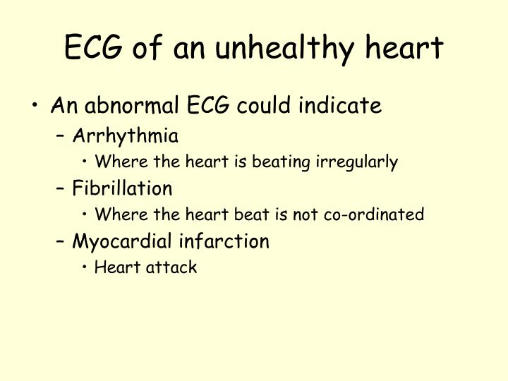 ECG of an unhealthy heart