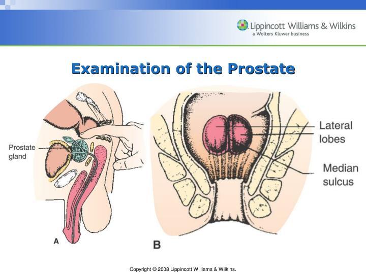 Examination of the Prostate