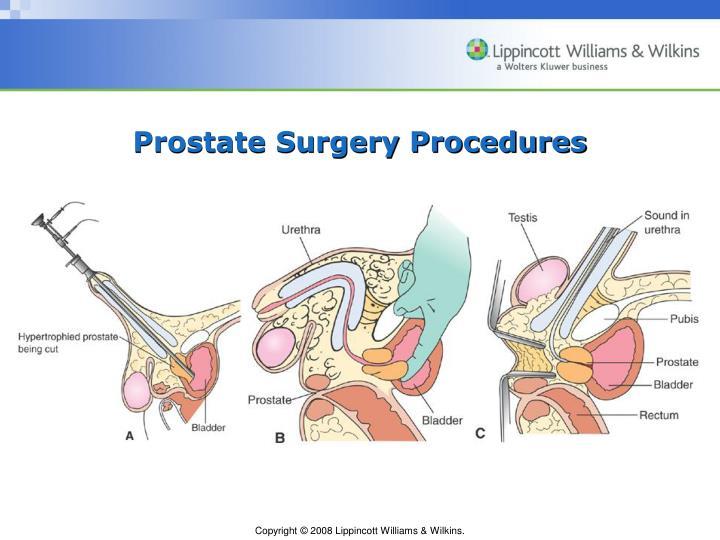Prostate Surgery Procedures