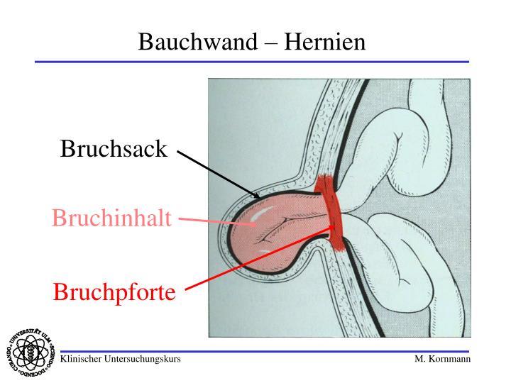 Bauchwand – Hernien