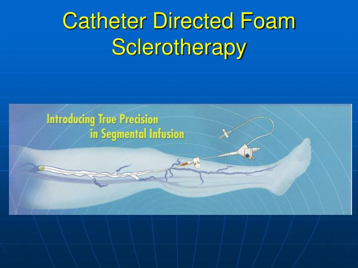 Catheter Directed Foam Sclerotherapy