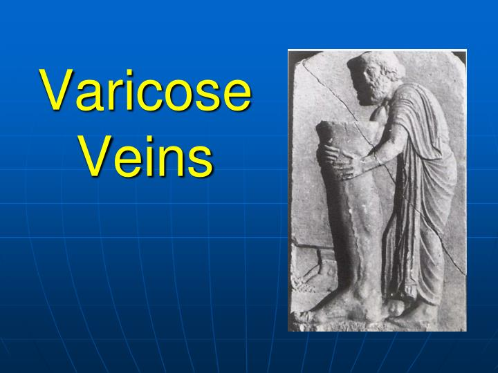 Varicose