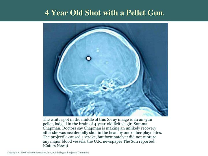 4 Year Old Shot with a Pellet Gun