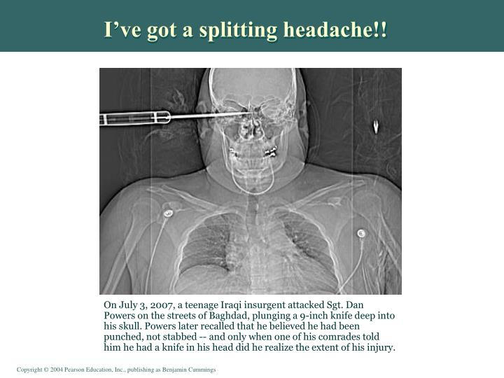 I've got a splitting headache!!