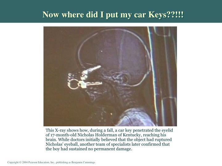 Now where did I put my car Keys??!!!