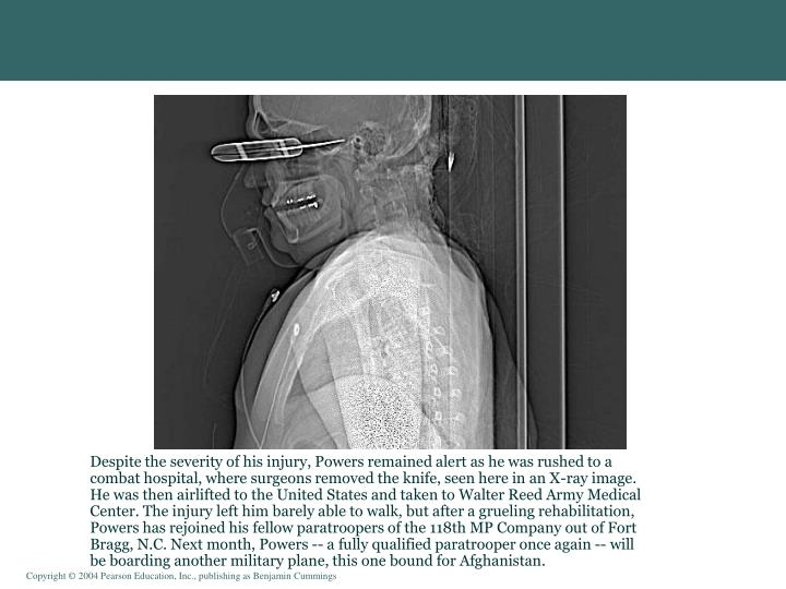 Despite the severity of his injury, Powers remained alert as he was rushed to a combat hospital, where surgeons removed the knife, seen here in an X-ray image. He was then airlifted to the United States and taken to Walter Reed Army Medical Center. The injury left him barely able to walk, but after a grueling rehabilitation, Powers has rejoined his fellow paratroopers of the 118th MP Company out of Fort Bragg, N.C. Next month, Powers -- a fully qualified paratrooper once again -- will be boarding another military plane, this one bound for Afghanistan.