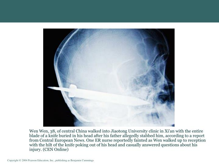 Wen Wen, 38, of central China walked into Jiaotong University clinic in Xi'an with the entire blade of a knife buried in his head after his father allegedly stabbed him, according to a report from Central European News. One ER nurse reportedly fainted as Wen walked up to reception with the hilt of the knife poking out of his head and casually answered questions about his injury. (CEN Online)