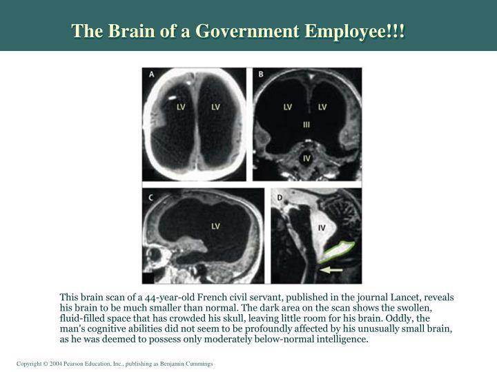 The Brain of a Government Employee!!!