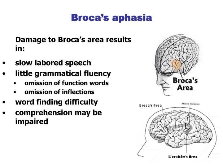 wernickes aphasia disorder essay Receptive aphasia the fluent aphasias as the thought disorder of schizophrenia develops  this is also referred to as wernicke's or receptive aphasia.