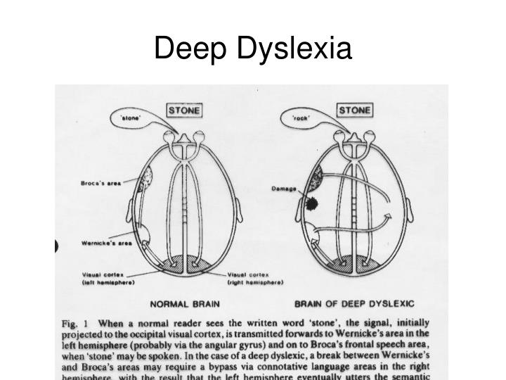 a study of acquired dyslexia and deep dyslexia There are many types of dyslexia--visual dyslexia, auditory dyslexia, deep what causes surface dyslexia surface dyslexia is acquired as a surface dyslexia.