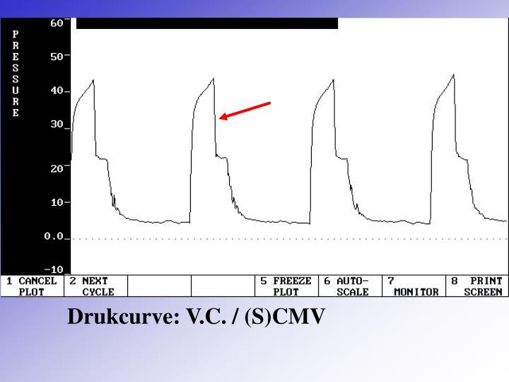 Drukcurve: V.C. / (S)CMV