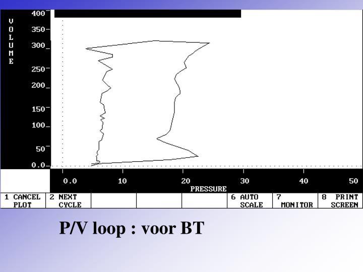 P/V loop : voor BT