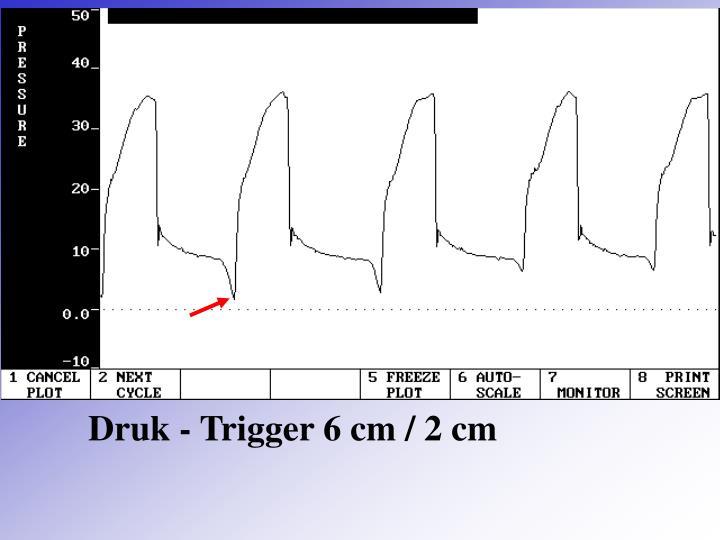 Druk - Trigger 6 cm / 2 cm