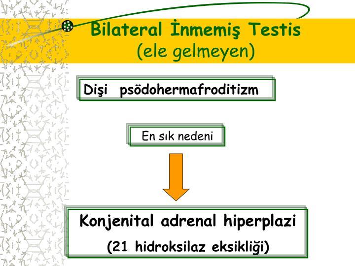 Bilateral İnmemiş Testis