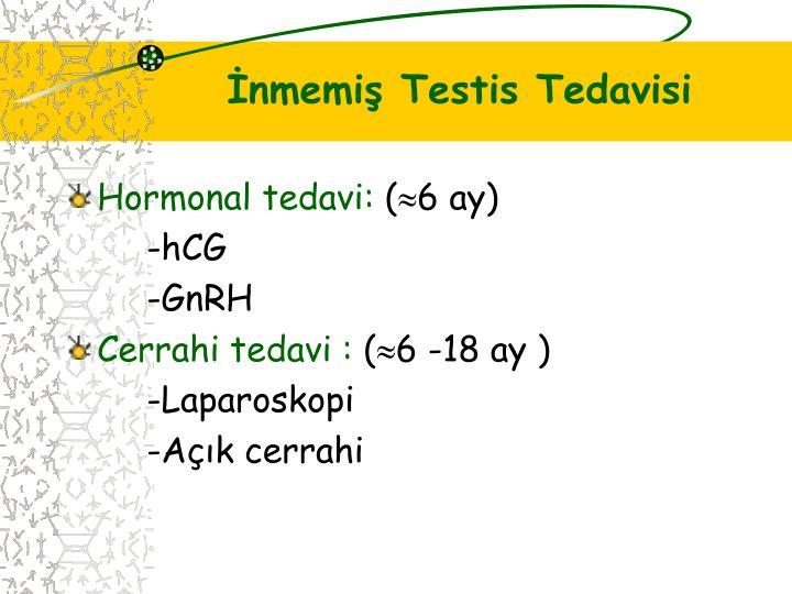 İnmemiş Testis Tedavisi
