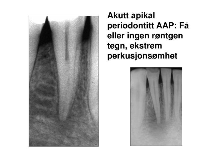 Akutt apikal periodontitt AAP: Få eller ingen røntgen tegn, ekstrem perkusjonsømhet