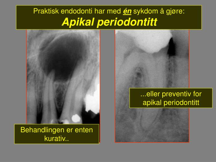 Praktisk endodonti har med