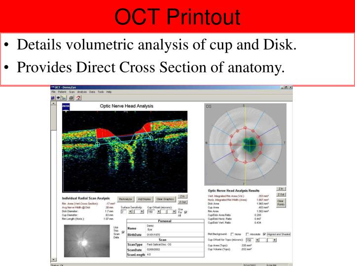 OCT Printout