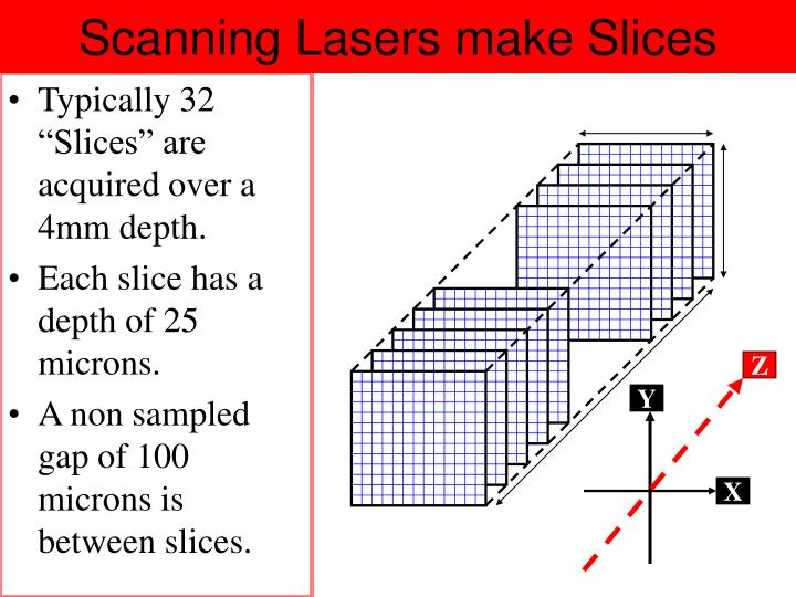 Scanning Lasers make Slices