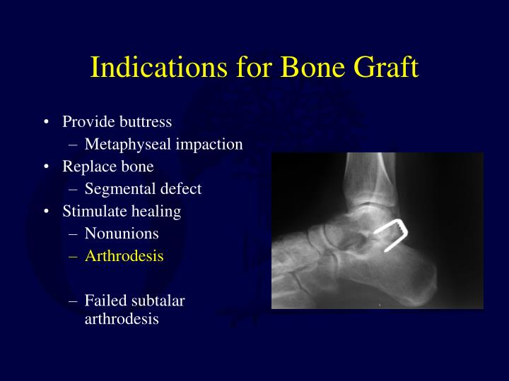 Indications for Bone Graft