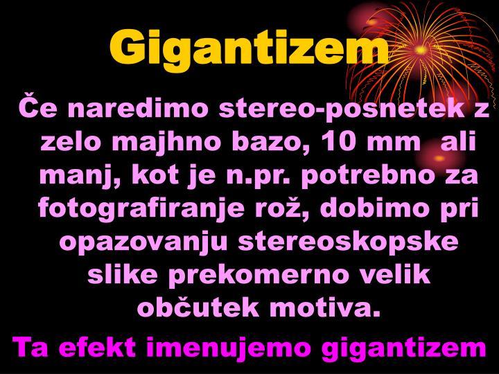 Gigantizem