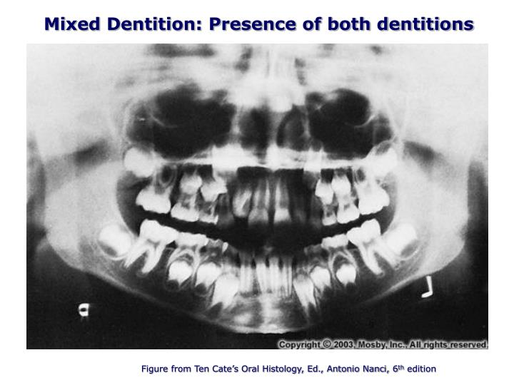 Mixed Dentition: Presence of both dentitions