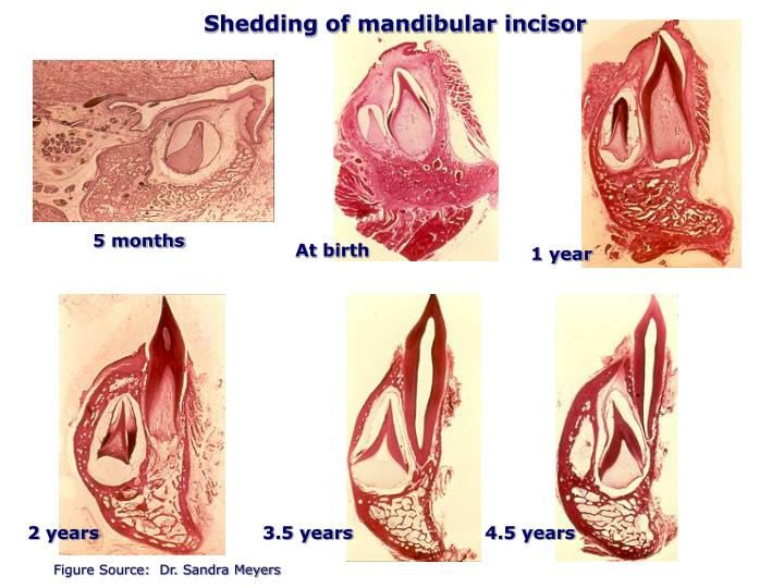 Shedding of mandibular incisor