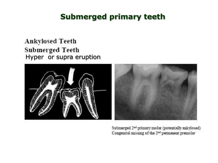 Submerged primary teeth