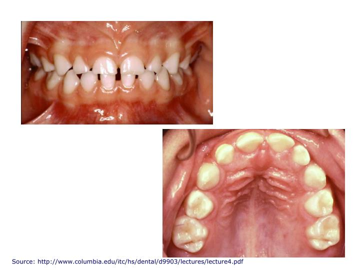 Source: http://www.columbia.edu/itc/hs/dental/d9903/lectures/lecture4.pdf