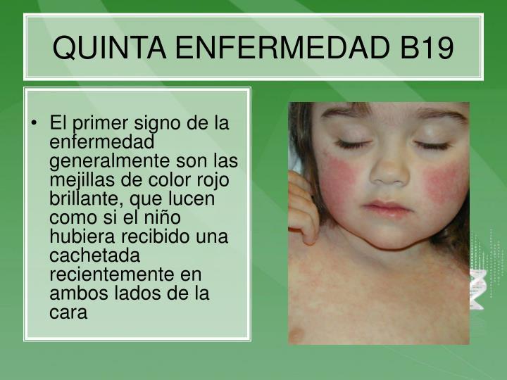 QUINTA ENFERMEDAD B19