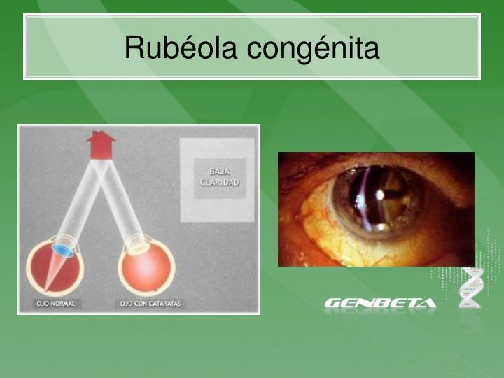 Rubéola congénita