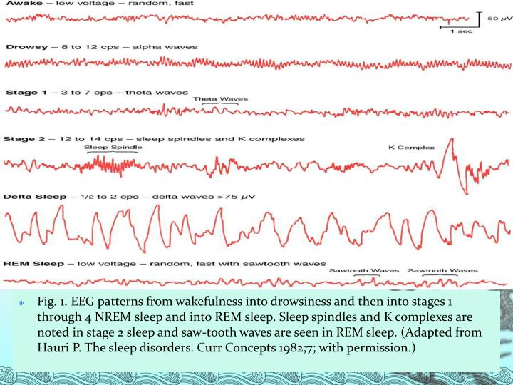 Fig. 1. EEG patterns from wakefulness into drowsiness and then into stages 1 through 4 NREM sleep and into REM sleep. Sleep spindles and K complexes are noted in stage 2 sleep and saw-tooth waves are seen in REM sleep. (Adapted from Hauri P. The sleep disorders. Curr Concepts 1982;7; with permission.)