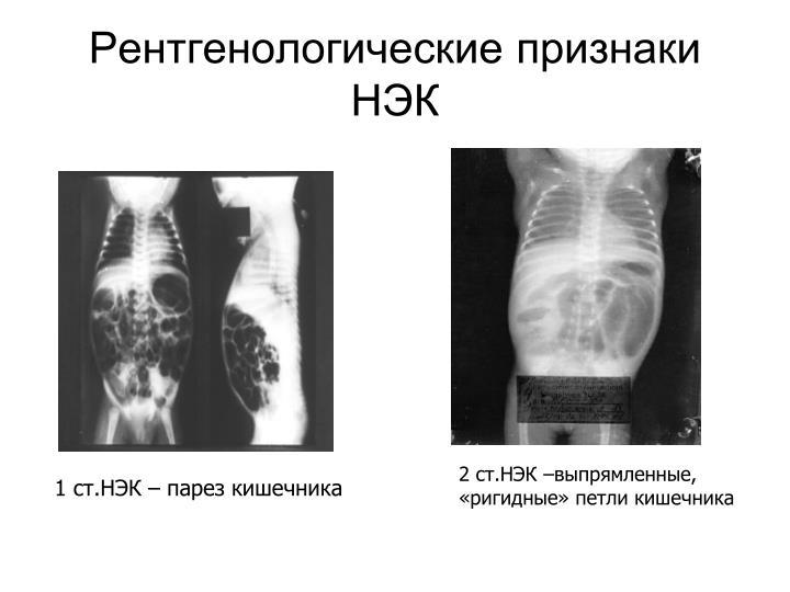 Рентгенологические признаки НЭК