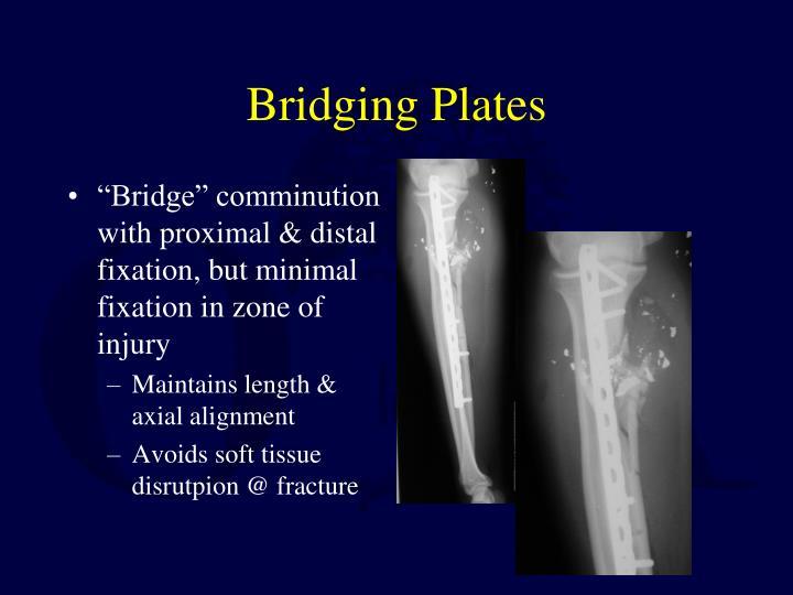 Bridging Plates